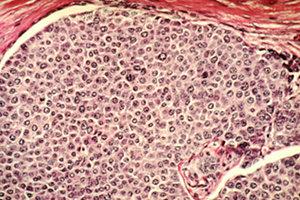 cellules cancer sein